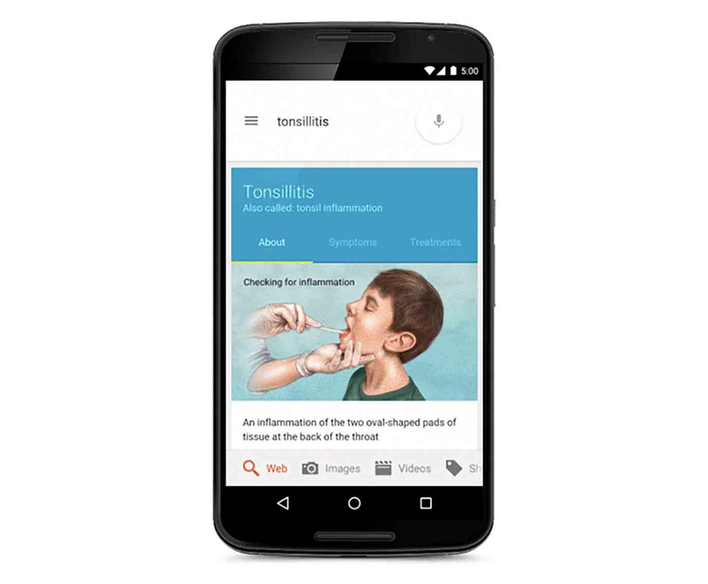 Google Nexus 6 medical info Knowledge Graph